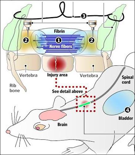 С помощью двух десятков нервных волокон ученые соединили разорванный спинной мозг. На рисунке видны нервные волокна и тонкий металлический проводок, защищающий новое нервное соединение от обрыва.