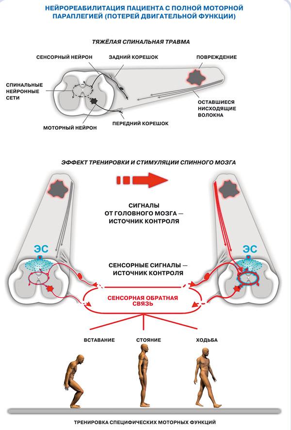 Травмы спинного мозга редко сопровождаются полным анатомическим перерывом. Оставшиеся неповреждёнными нервные волокна могут способствовать функциональному восстановлению.