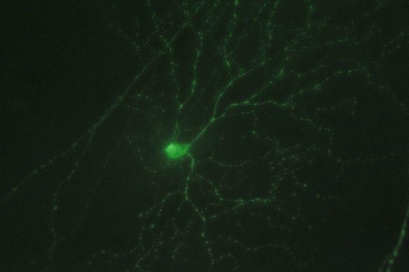 Ганглионарная клетка сетчатки. (Фото Bryan Jones / www.flickr.com/photos/bwjones/5727203037.)