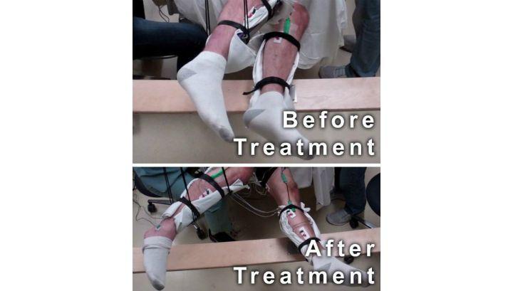 Пять парализованных мужчин, проходивших неинвазивную стимуляцию спинного мозга, смогли вновь шевелить ногами (фото Neuromuscular Research Laboratory/UCLA).