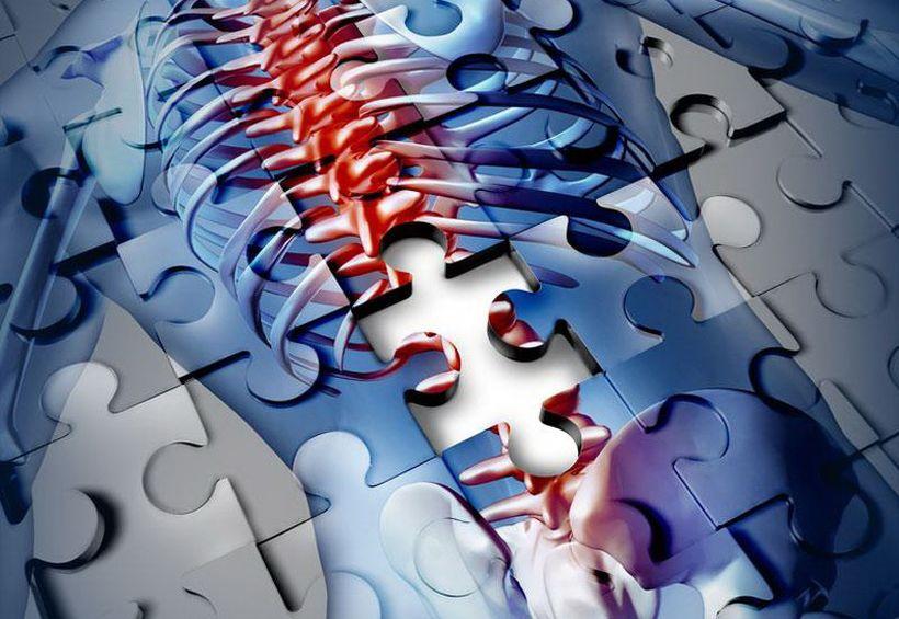 Шаг в обход. Электрохимические нейропротезы — против паралича