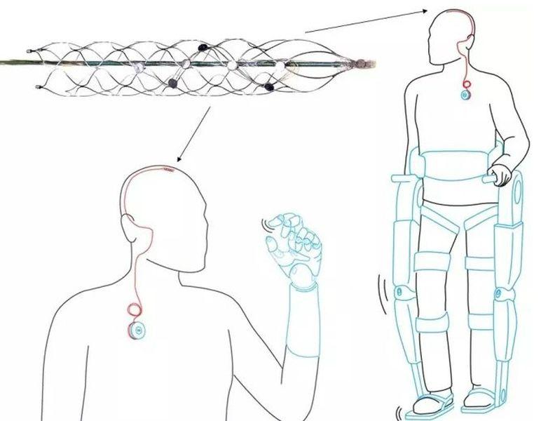 Новое устройство передаёт сигналы, полученные от головного мозга человека, в процессор, управляющий протезом или экзоскелетом (иллюстрация University of Melbourne).