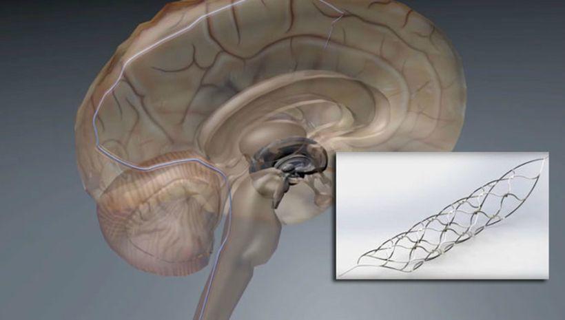 Австралийцы нашли способ починить спинной мозг