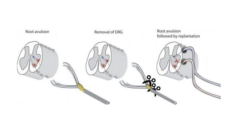 Ученые выяснили, как восстановить спинной мозг после травмы