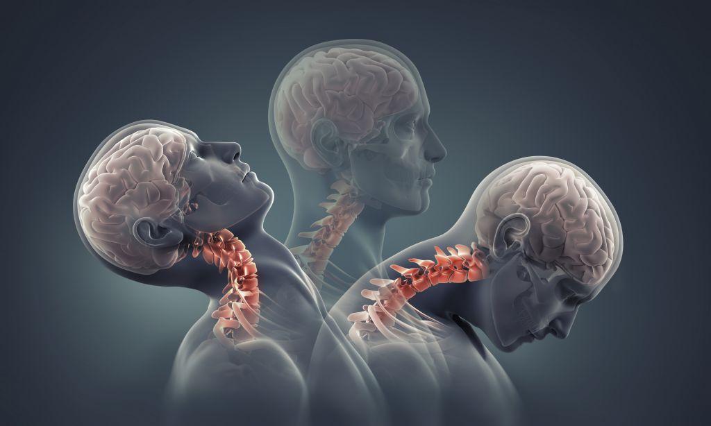 Шейные травмы. Какие существуют методики реабилитации при этих видах травм.